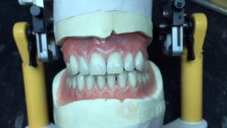 having new dentures made faqs