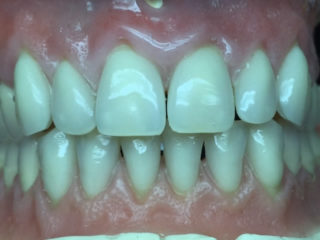 Before image of someones gum and teeth