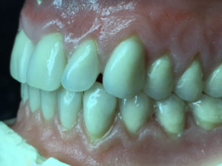 a image of someones teeth inside there mouth