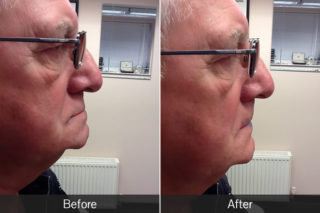 before and after of a man with glasses