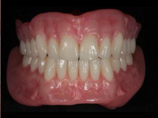 front facing denture preparation