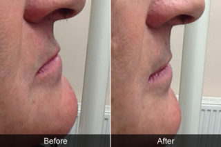 Before and after counteracting facial ageing in denture wearers