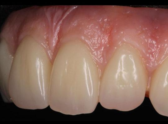 Denture types