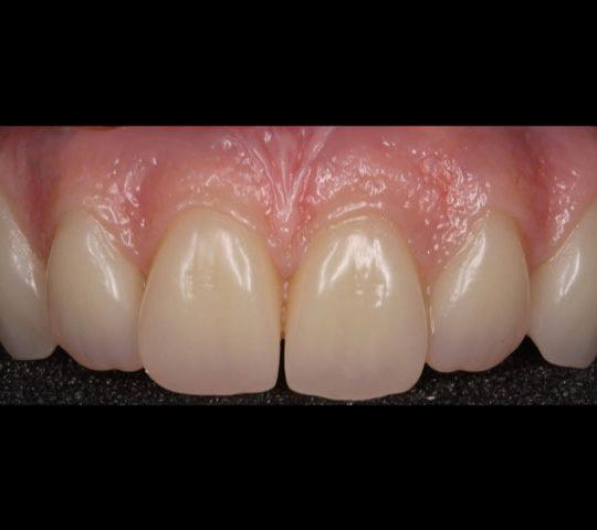 Denture preparation