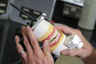 having new dentures Denture preparation