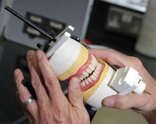 having new dentures Denture preparation