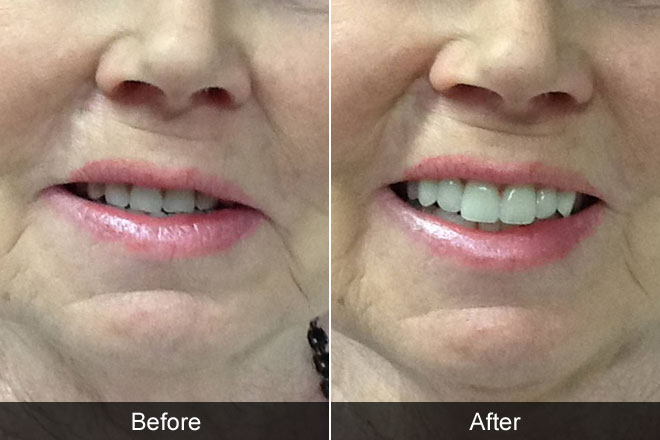 Facial ageing in denture wearers before and after image