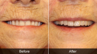 Before and after when should I replace my dentures