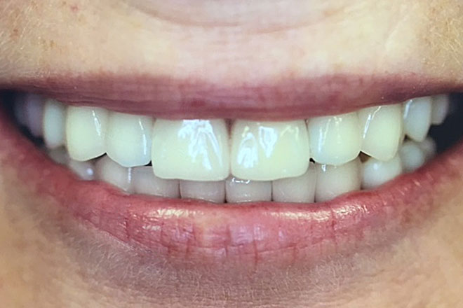 How important is a smile blog post kevin manners denture clinics nottingham