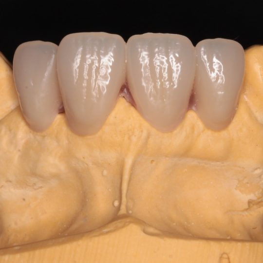 gum fitter partial types of dentures