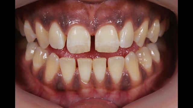 ethnic-dentures-kmdc.png