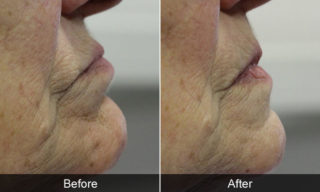 before-after poorly fitting dentures