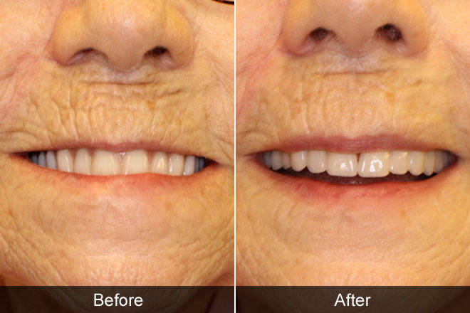 before and after of a persons dentures
