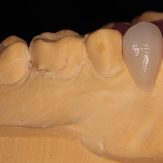 removable partial denture for one tooth