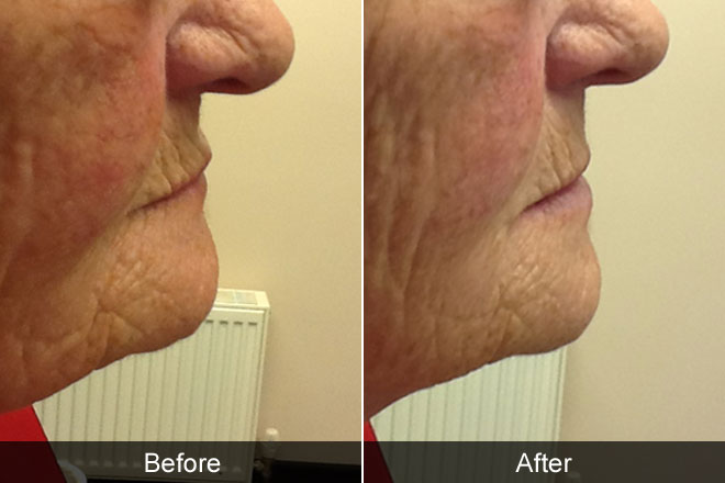 before and after of elderly woman with a radiator in the background