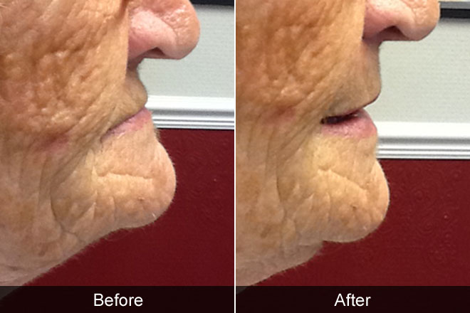 before and after of elderly woman