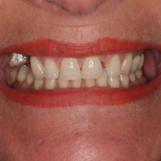 before denture picture