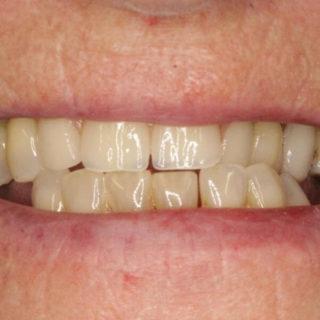 chrome partial dentures