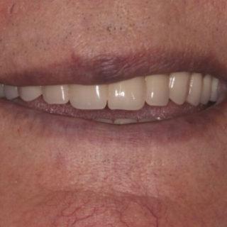 new full dentures
