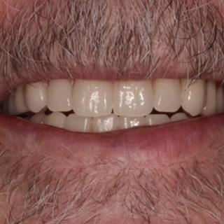 new acrylic dentures