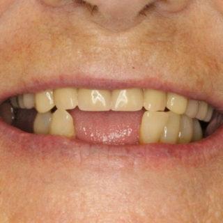 missing lower teeth