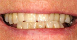 poor fitting dentures
