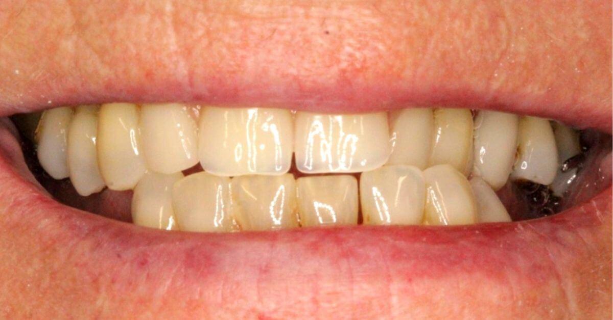 denture-fit-1.jpg