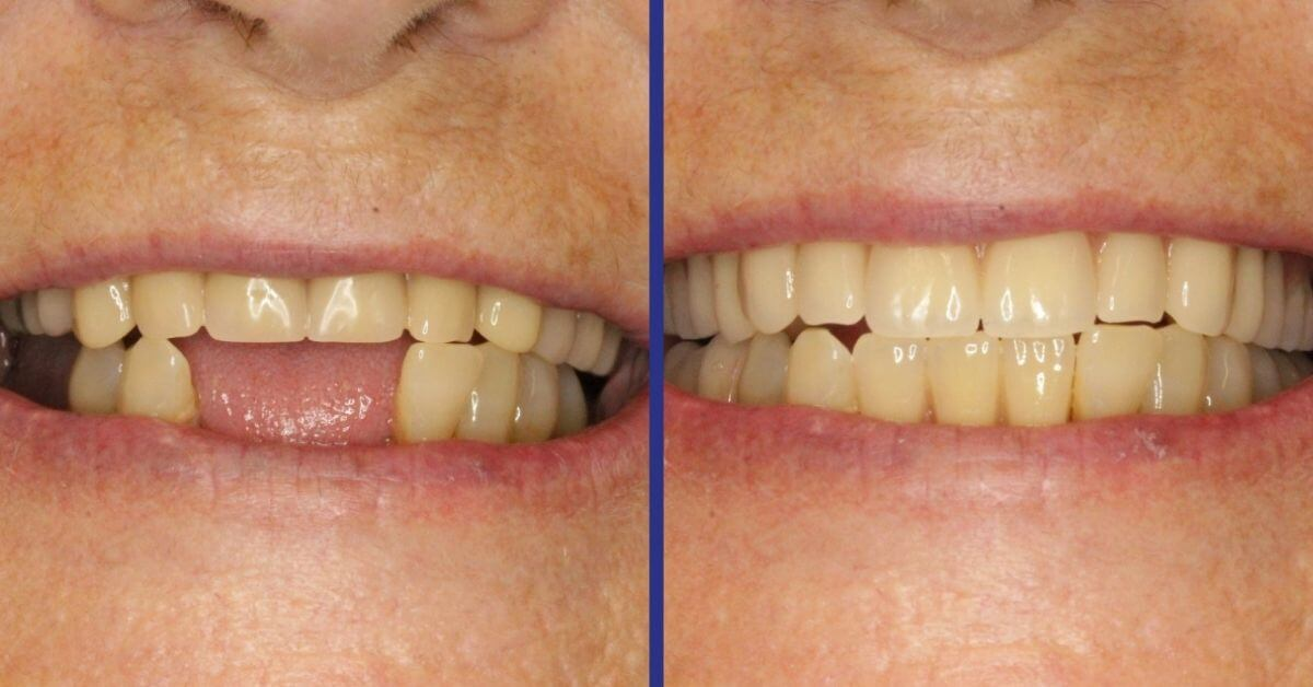 the-difference-before-and-after-dentures.jpg
