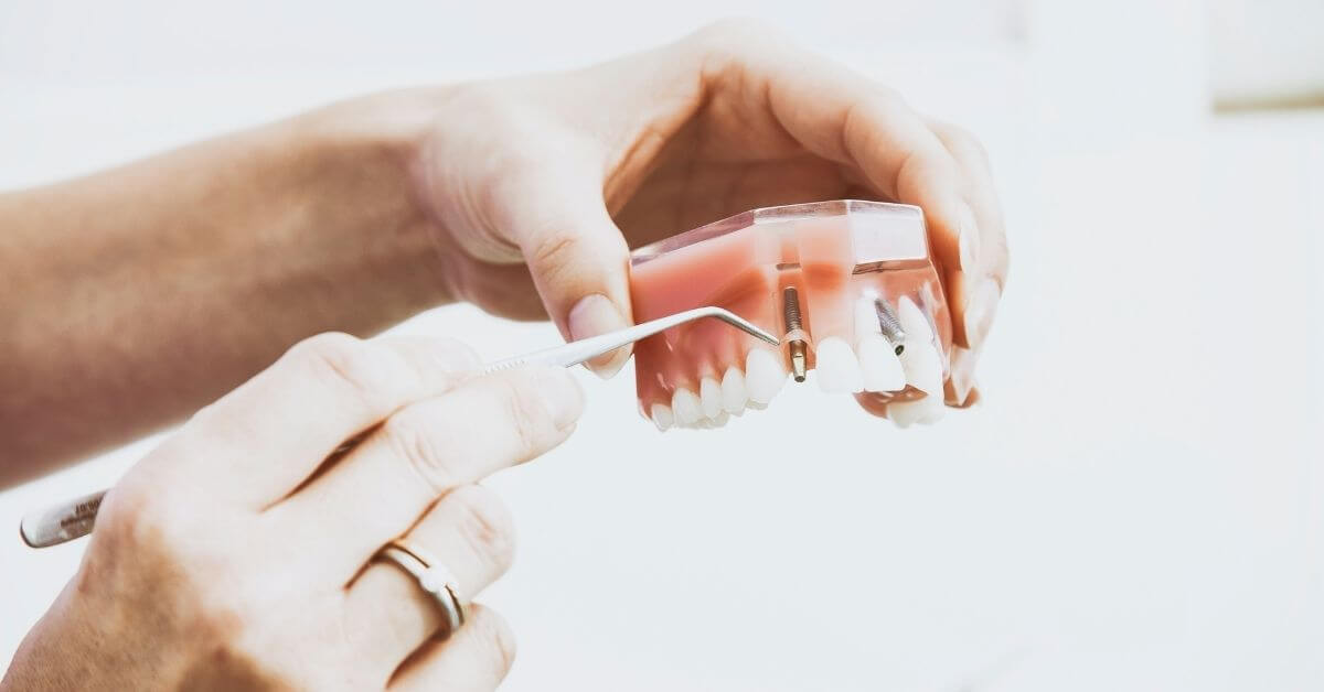 what-are-the-best-dentures-to-get.jpg
