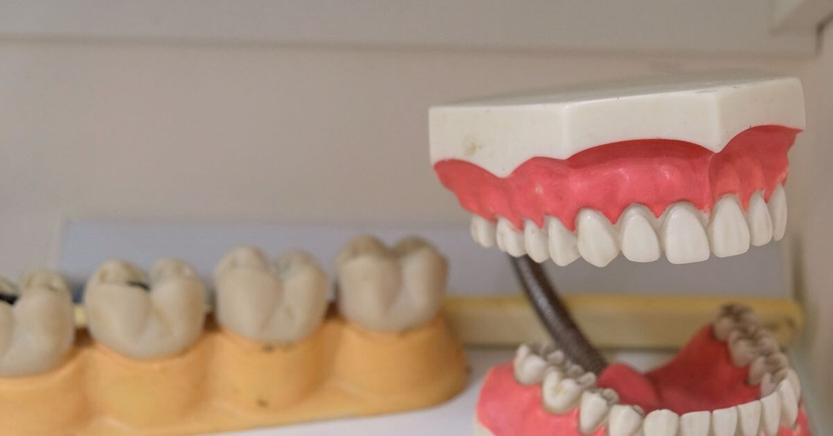 why-do-some-dentures-cost-more-than-others.jpg